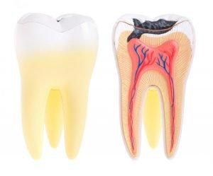Dental Abscess Emergency Dentist Preston