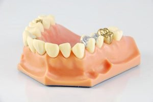 Lost-or-Damaged-Dental-Crown-Inlays-and-Onlays-Preston