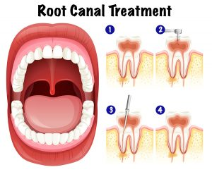 Dental Vector of Root Canal Treatment