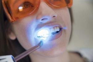 Dental Bonding Dentist Preston
