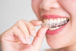 Invisalign Dentist Preston