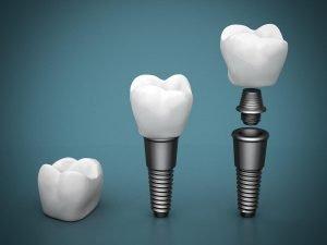 Dental Implants Preston