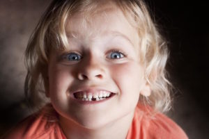 Top 5 Tips to Deal with your Childs Knocked out Tooth