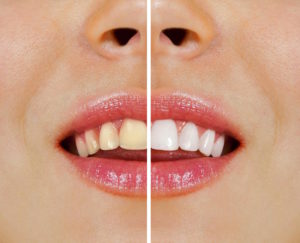 Preston Dentist Tips Over-the-Counter Whitening or Professional Teeth Whitening